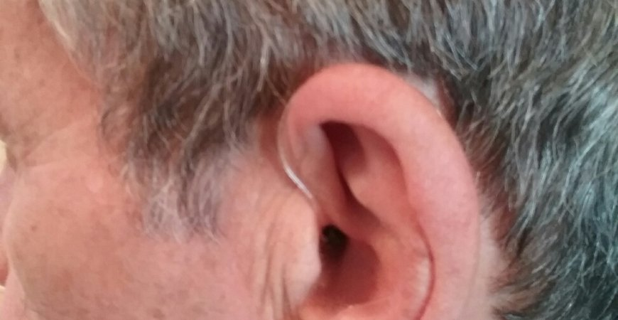 Ear Wax Removal Chepstow image